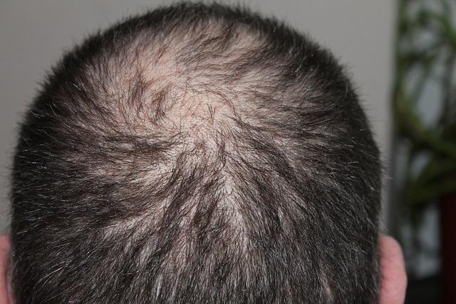 Last van haaruitval of dun haar?
